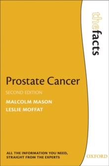 Prostate Cancer, Paperback