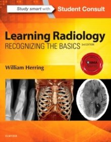 Learning Radiology : Recognizing the Basics, Paperback Book