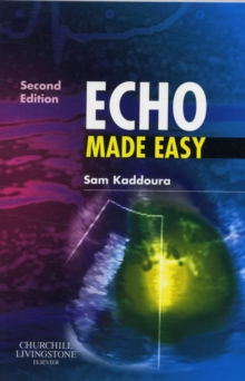 Echo Made Easy, Paperback