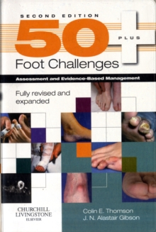 50+ Foot Challenges : Assessment and Evidence-based Management, Paperback