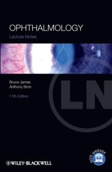 Lecture Notes: Ophthalmology, Paperback