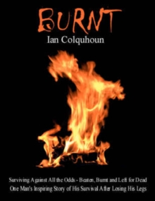Burnt : Surviving Against All the Odds - Beaten, Burnt and Left for Dead. One Man's Inspiring Story of His Survival After Losing His Legs, Paperback
