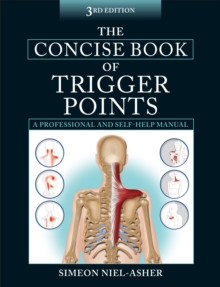The Concise Book of Trigger Points, Paperback