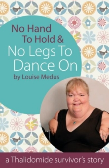 No Hands to Hold & No Legs to Dance on : A Thalidomide Survivor's Story, Paperback