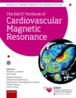 The EACVI Textbook of Cardiovascular Magnetic Resonance - Book