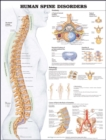 Human Spine Disorders Anatomical Chart - Book