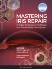Mastering Iris Repair : A Video Textbook of Iris Repair and Pupilloplasty Techniques - eBook