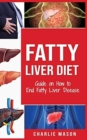 Fatty Liver Diet : Guide on How to End Fatty Liver Disease Fatty Liver Diet Books: Fatty Liver Diet - Book