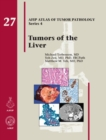 Tumors of the Liver - Book