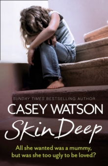 Skin Deep : All She Wanted Was a Mummy, but Was She Too Ugly to be Loved?, Paperback / softback Book