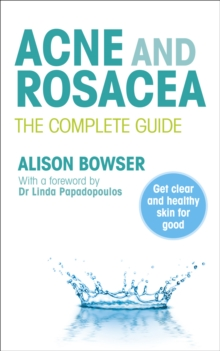 Acne and Rosacea : The Complete Guide, Paperback / softback Book