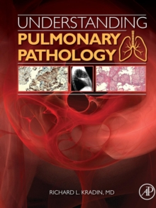 Understanding Pulmonary Pathology : Applying Pathological Findings in Therapeutic Decision Making, Paperback / softback Book