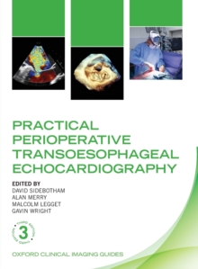 Practical Perioperative Transoesophageal Echocardiography, Paperback / softback Book