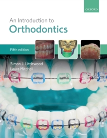 An Introduction to Orthodontics, Paperback / softback Book