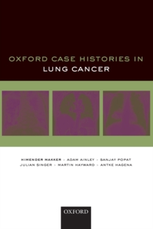Oxford Case Histories in Lung Cancer, Paperback / softback Book