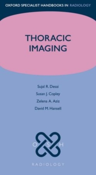 Thoracic Imaging, Paperback / softback Book