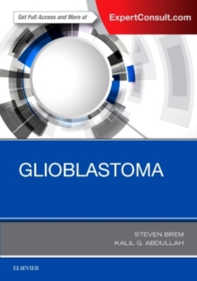 Glioblastoma, Hardback Book