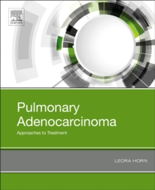 Pulmonary Adenocarcinoma: Approaches to Treatment, Hardback Book