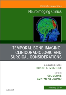 Temporal Bone Imaging: Clinicoradiologic and Surgical Considerations, An Issue of Neuroimaging Clinics of North America, Hardback Book