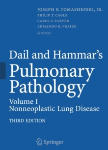 Dail and Hammar's Pulmonary Pathology : Volume I: Nonneoplastic Lung Disease, Hardback Book