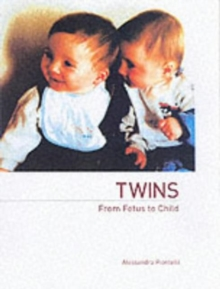 Twins - From Fetus to Child, Paperback Book