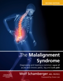The Malalignment Syndrome : diagnosis and treatment of common pelvic and back pain, Hardback Book