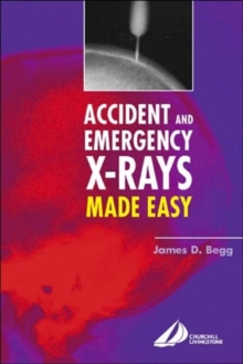 Accident and Emergency X-rays Made Easy, International Edition, Paperback / softback Book