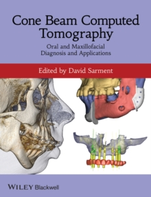 Cone Beam Computed Tomography : Oral and Maxillofacial Diagnosis and Applications, Paperback / softback Book