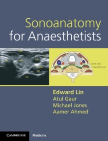 Sonoanatomy for Anaesthetists, Spiral bound Book
