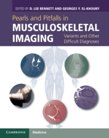 Pearls and Pitfalls in Musculoskeletal Imaging : Variants and Other Difficult Diagnoses, Hardback Book