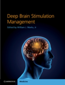 Deep Brain Stimulation Management, Hardback Book