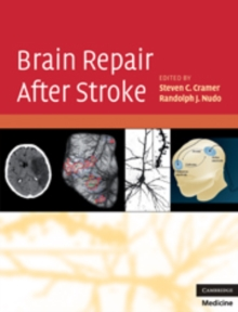 Brain Repair After Stroke, Hardback Book