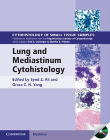 Lung and Mediastinum Cytohistology with CD-ROM, Mixed media product Book