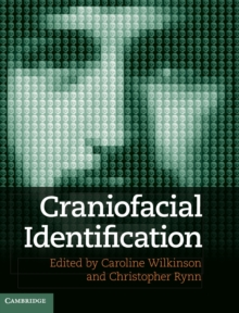 Craniofacial Identification, Hardback Book