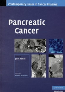 Contemporary Issues in Cancer Imaging : Pancreatic Cancer, Hardback Book