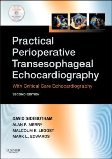 Practical Perioperative Transesophageal Echocardiography : Text with DVD-ROM, Paperback / softback Book