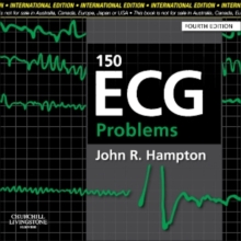 150 ECG Problems, International Edition, Paperback Book