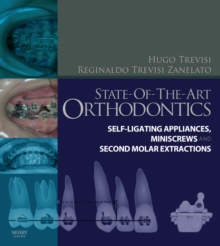 State-of-the-Art Orthodontics : Self-Ligating Appliances, Miniscrews and Second Molars Extraction, Hardback Book