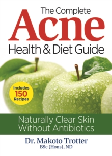 The Complete Acne Health & Diet Guide : Naturally Clear Skin Without Antibiotics, Paperback Book