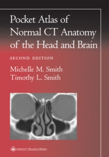 Pocket Atlas of Normal CT Anatomy of the Head and Brain, Paperback Book