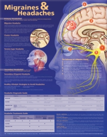 Migraines and Headaches Anatomical Chart, Wallchart Book