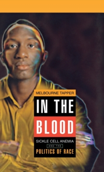 In the Blood : Sickle Cell Anemia and the Politics of Race, Hardback Book