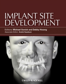 Implant Site Development, Hardback Book