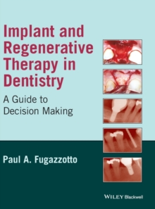 Implant and Regenerative Therapy in Dentistry : A Guide to Decision Making, Hardback Book