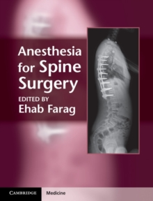 Anesthesia for Spine Surgery, Hardback Book
