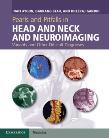 Pearls and Pitfalls in Head and Neck and Neuroimaging : Variants and Other Difficult Diagnoses, Hardback Book