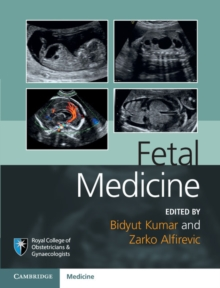 Royal College of Obstetricians and Gynaecologists Advanced Skills : Fetal Medicine, Hardback Book