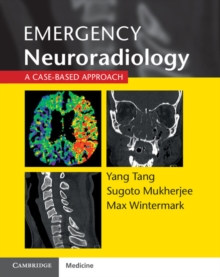 Emergency Neuroradiology : A Case-Based Approach, Paperback / softback Book