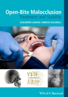 Open-Bite Malocclusion : Treatment and Stability, Paperback / softback Book