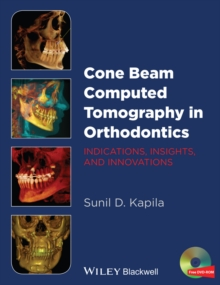 Cone Beam Computed Tomography in Orthodontics : Indications, Insights, and Innovations, Hardback Book